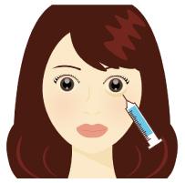 涙袋にヒアルロン酸を注入するイメージ